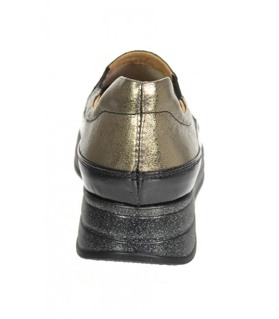 Čierne lesklé tenisky so zlatým zvrškom DTE3316